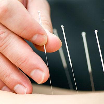 acupuncture-allergy