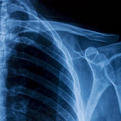 bone-strengthening-drugs