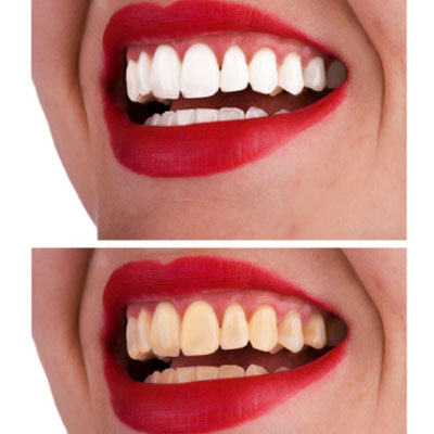 icky-teeth