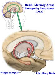 brain memory area 180 Sleep Apnea May Damage Brain Cells Associated With Memory
