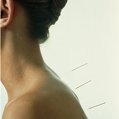 acupuncture-in-back
