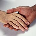 brown-spots-hands