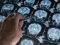 headache-diagnosis