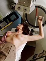 woman-radiation-breast-cancer