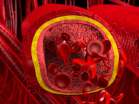 red-clogged-arterie
