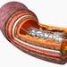 artery-catheter-stent