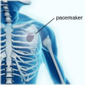 pacemaker-size-diagram