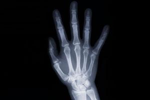 osteo-arthritis-hand