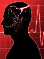 emergency-headache