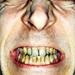 smokers-teeth