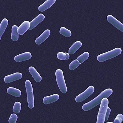 bacteria-sinus-cause