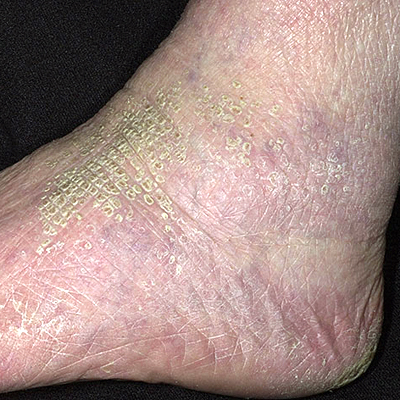 red blotches on lower legs #11