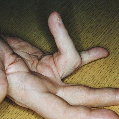 flexion-finger