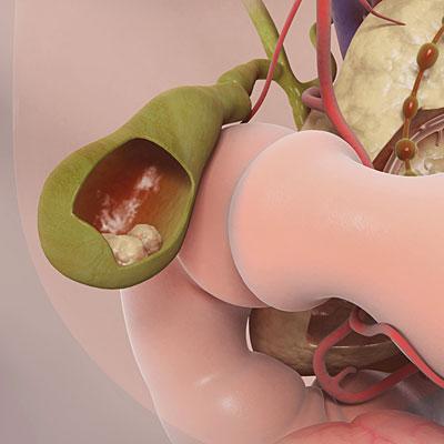 gallstones-illo
