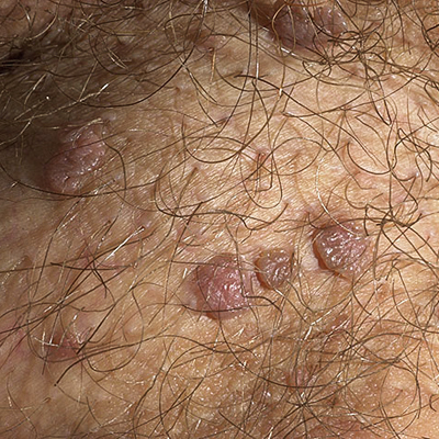 Genital Warts (HPV) Picture Image on MedicineNet.com