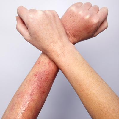 Аллергический вагинальный дерматит