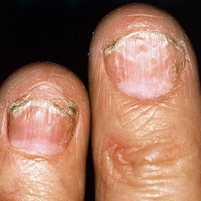 finger-nail-psoriasis