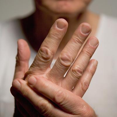 psoriasis-arthritis-hands