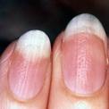 psoriasis-nail-finger