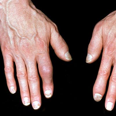 psoriasis-sausage-fingers
