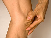 ra joint pain 200x150 CDC: Achy Joints on the Rise in U.S.