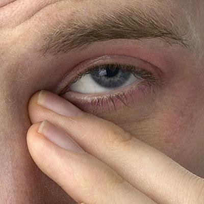 sinus-eyes