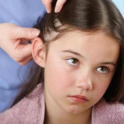 how-to-kill-lice