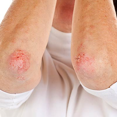 Eczema (atopic dermatitis), psoriasis, and dry skin (xerosis) are worse in the winter when the humidity is low 2