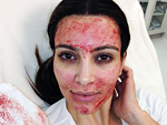 Kim Kardashian - Vampire Facial