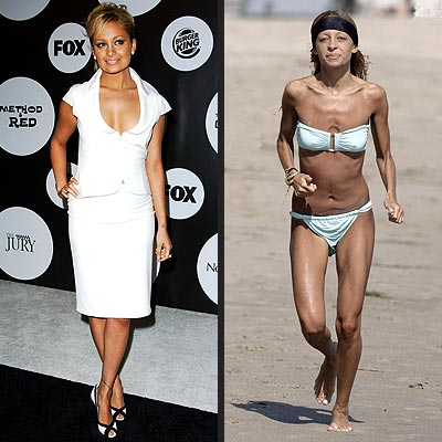 Nicole Richie is much too thin