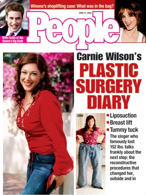 photo | Carnie Wilson Cover, Plastic Surgery, Carnie Wilson, Prince William, Winona Ryder