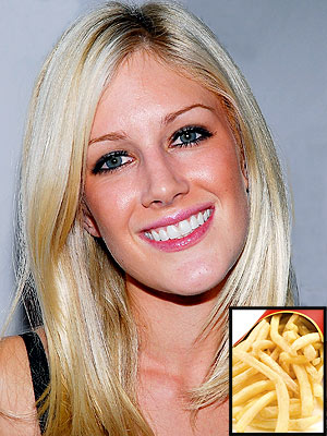 heidi montag surgery disaster. Heidi+montag+after+surgery