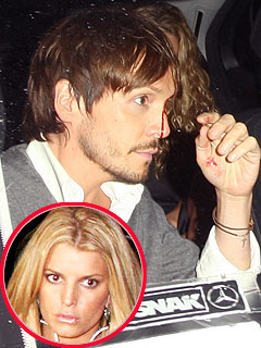 Jessica Simpson's Pal Injured by Paparazzi
