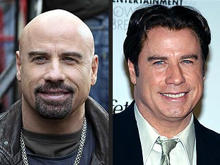 POLL: Is John Travolta Better Bald?