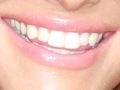 This grin belongs to which country singer?