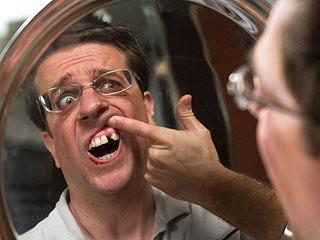 Ed Helms Explains His Real-Life Missing Tooth