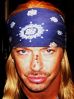 Bret Michaels Shows Off His Tonys Bruises