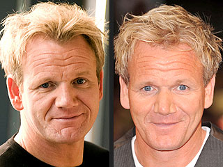 Gordon Ramsay's Newest Recipe: Cosmetic Procedure