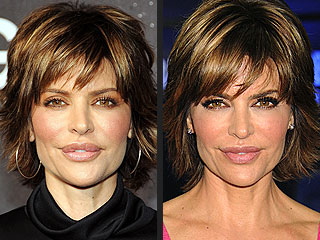 Lisa Rinna's Lip Surgery Didn't Make Harry Hamlin Smile at First | Lisa Rinna