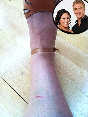 Dancing with the Stars - Ricki Lake Injured