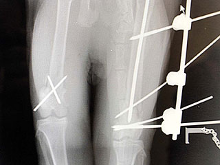 Me-Ouch! 'Bionic' Cat Survives Four-Story Fall | Cats