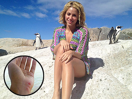 Shakira Attacked by Sea Lion in South Africa