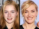 Kate Winslet's Changing Looks! | Kate Winslet