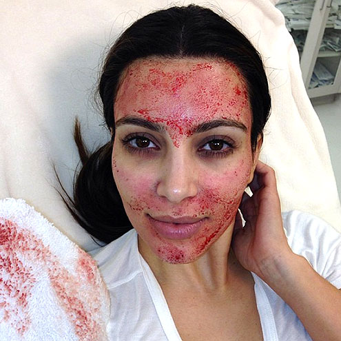 BLOOD FACIALS photo | Kim Kardashian