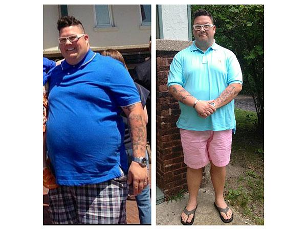 chef graham elliot weight loss surgery