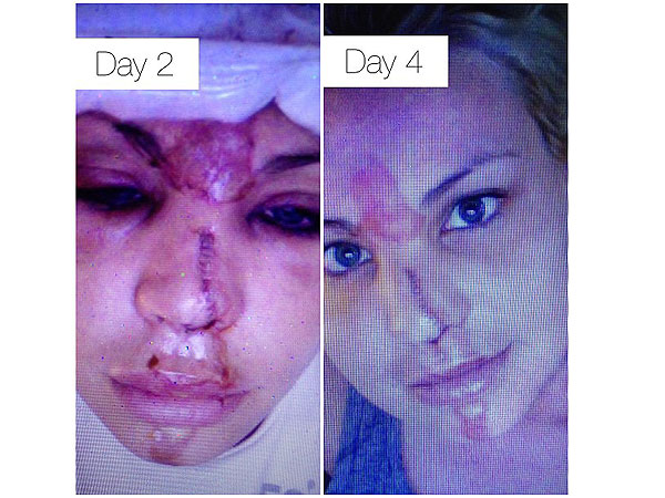 Lisa D'Amato of America's Next Top Model Seriously Injures Face in Freak Accident| Health, America's Next Top Model, Real People Stories