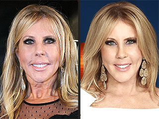 See Real Housewife Vicki Gunvalson's New Face