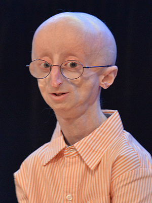 Sam Berns Dies; 'Life According to Sam' Star