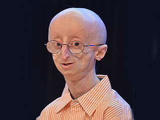 Sam Berns, Remarkable 17-Year-Old with Rare Aging Disease, Dies