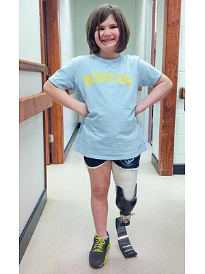 Boston Marathon Bombing Survivor Who Lost Her Brother Gets a New Leg